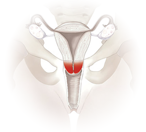 cervical cancer logo