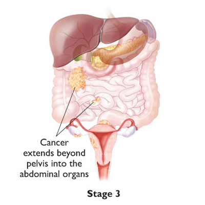 ovarian diagram 5